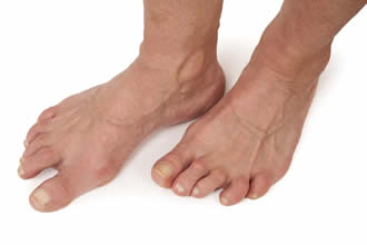 How Rheumatoid Arthritis Affects the Feet